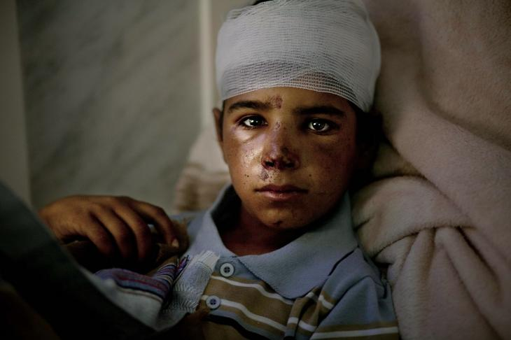 11-year-old Chaher is between life and death with shrapnel in his head. He was hit by an airstrike as he was looking after his flock with his 9-year-old brother. The hospital in Saada, Houthi stronghold, has no equipment or qualified personal to retrieve the shrapnel.